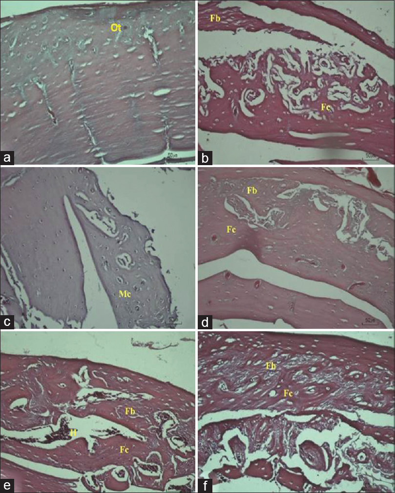 Figure 3: Histological observation at ×20 magnification of sample 2: (a) control; (b) defect; (c) as-cast Ti-6Al-4V ELI; (d) 850°C heat-treated Ti-6Al-4V ELI; (e) 950°C heat-treated Ti-6Al-4V ELI; 1050°C heat-treated Ti-6Al-4V ELI. (f) Bone regeneration component such as fibrous tissue (Fb); fibrocartilage (Fc); mineralized cartilage (Mc), and another component such as hemorrhage (H) or microhemorrhage (Mh) can be seen
