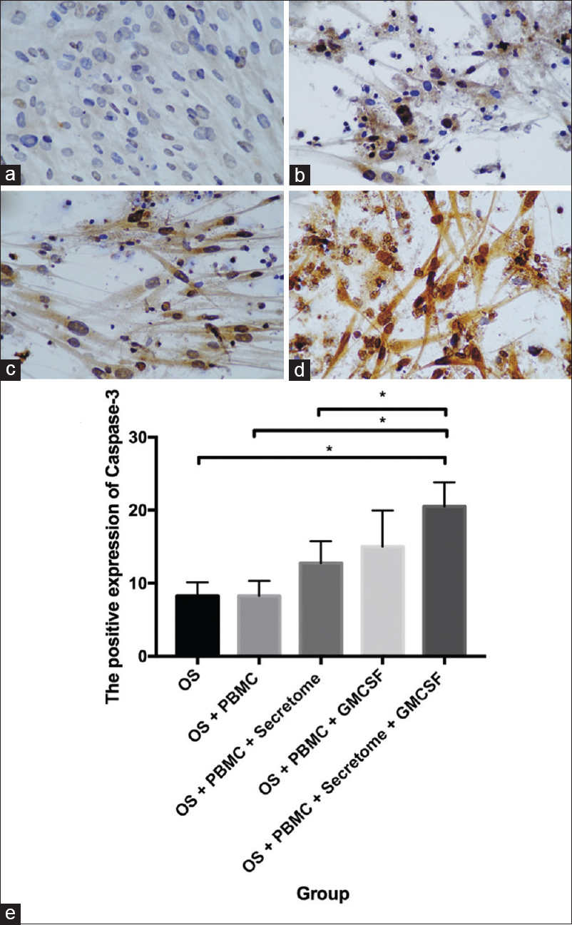 Figure 5: The positive expression of caspase-3 in (a) osteosarcoma-Mesenchymal stem cells only, (b) osteosarcoma-Mesenchymal stem cells co-cultivated with Peripheral blood mononuclear cells sensitized by secretome (c) osteosarcoma-Mesenchymal stem cells co-cultivated with Peripheral blood mononuclear cells sensitized by granulocyte macrophage colony stimulating factor (d) osteosarcoma-Mesenchymal stem cells co-cultivated with Peripheral blood mononuclear cells activated using granulocyte macrophage colony stimulating factor and secretome (e) The caspase-3 epression in osteosarcoma-Mesenchymal stem cells co-cultivated with Peripheral blood mononuclear cells sensitized by secretome, granulocyte macrophage colony stimulating factor, and combination